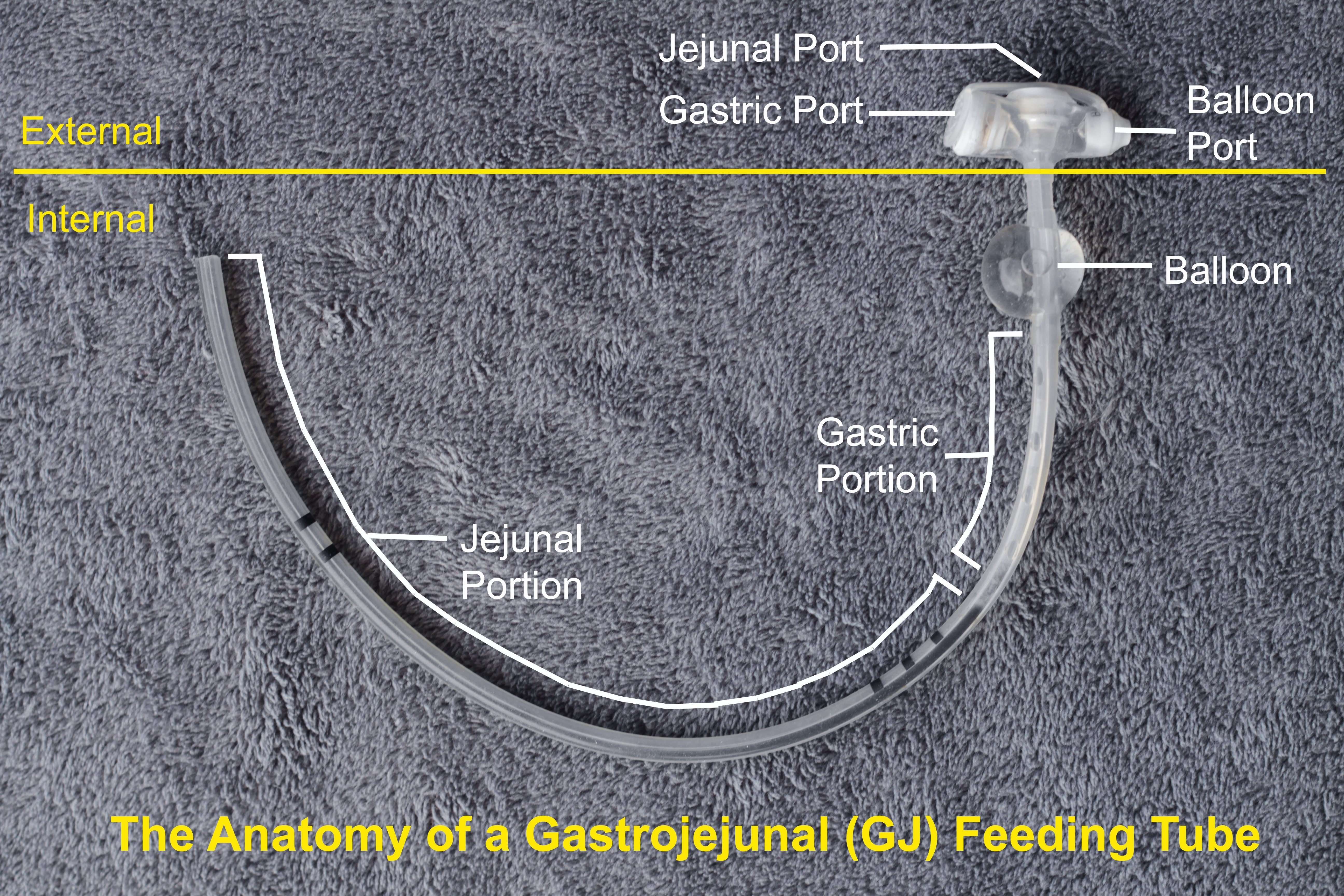 Gastro jejunal gj tubes feeding tube awareness foundation gj tubes are placed in the stomach just like g tubes but a thin long tube is threaded into the jejunal j portion of the small intestine ccuart Gallery